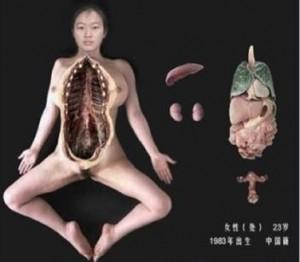人体標本になった女性