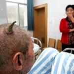 奇病:頭に角が生えた人