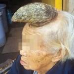 四川省の老人 頭に13cmの「角」