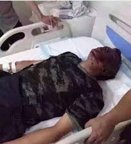 天津爆発消防隊員負傷者
